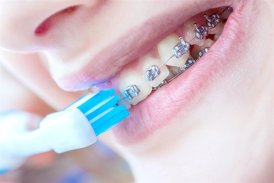 Dental Braces YHD