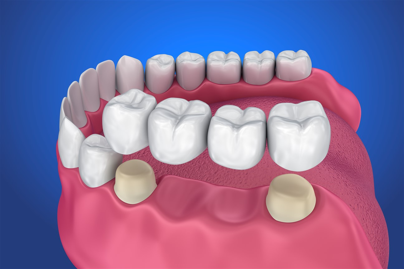 Dental Bridge 3D YHD
