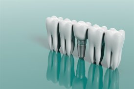 dental implants YHD